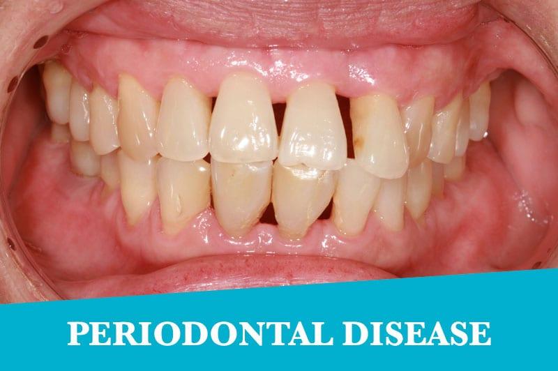 Periodontal2