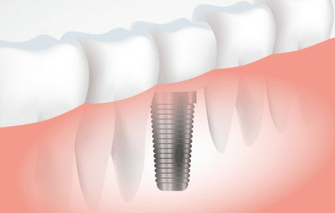Dental Implants Fallbrook - A Smile Shoppe - Cosmetic Dentistry