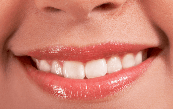 Porcelain Veneers Fallbrook