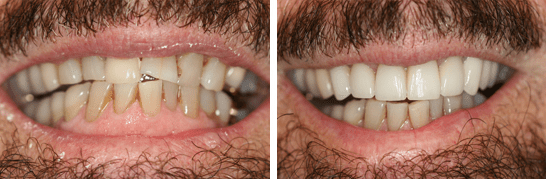 Smile restored with the placement of 9 Upper All Porcelain Crowns