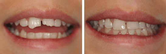Bonded Composite (White) fillings to restore form, function and Smile.